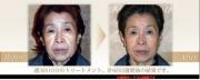 Clione Dot, Японский миниатюрный профессиональный аппарат мезотерапии и электропорации 6 в 1